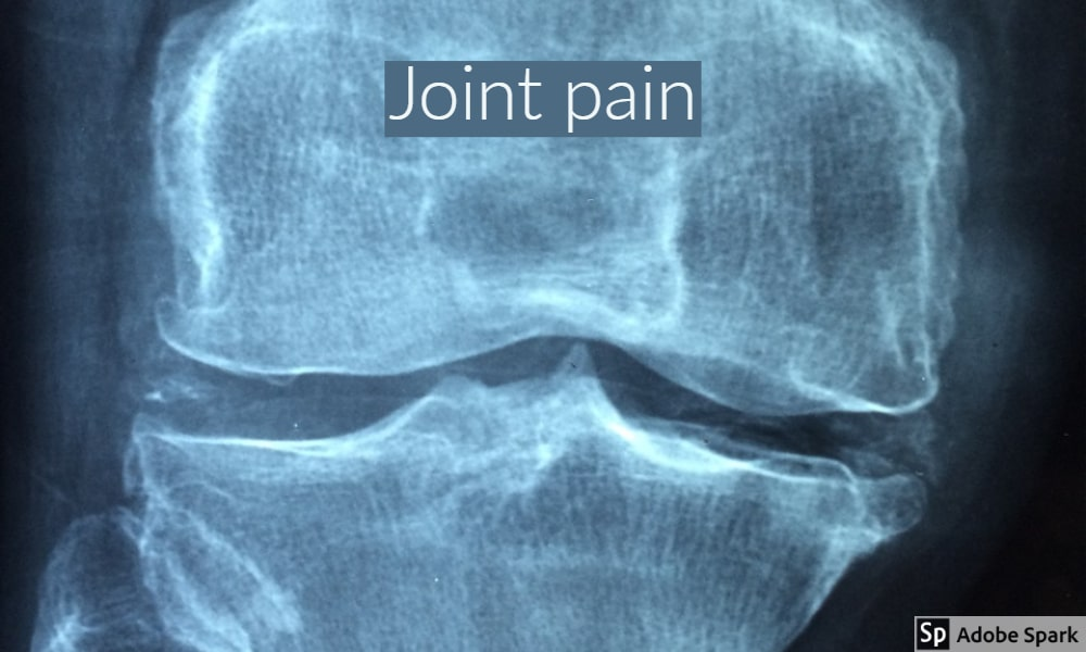 X-ray image of a joint by The Healthy RD
