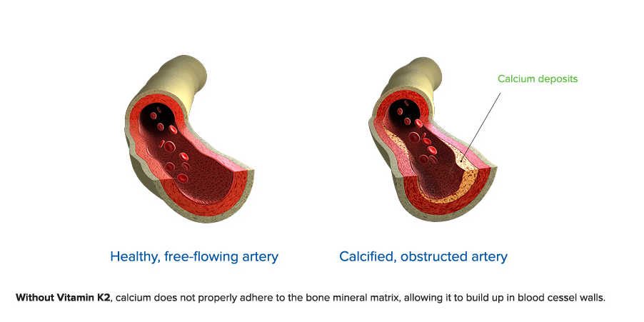 Healthy free flowing artery comparison to a calcified artery by The Healthy RD