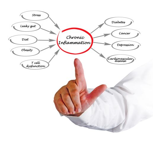 Finger pointing at various causes of inflammation in the body by The Healthy RD