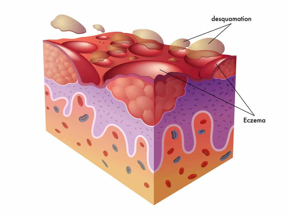 Eczema graphic showing the skin layers by The Healthy RD