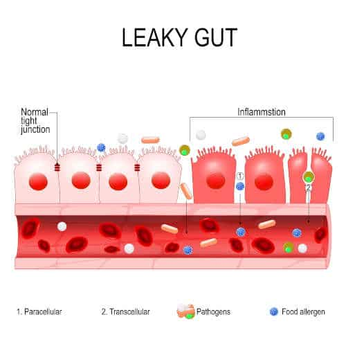 Leaky gut pictorial by The Healthy RD