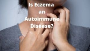 Is eczema an autoimmune disease depicting eczema on dark skin by The Healthy RD