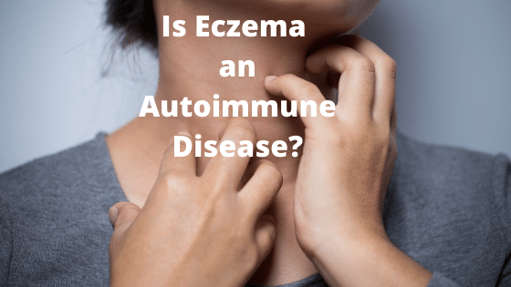 Women with darker skin eczema depicting is eczema an autoimmune disease by The Healthy RD